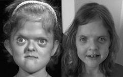 Pfeiffer Sendromu resimleri