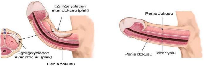 erektil-disfonksiyon-ereksiyon