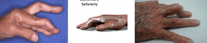 dugme iligi deformitesi