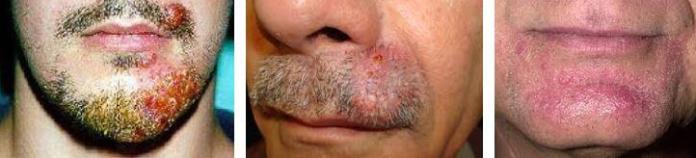 tinea barbae nedir ve tedavisi nasil yapilir