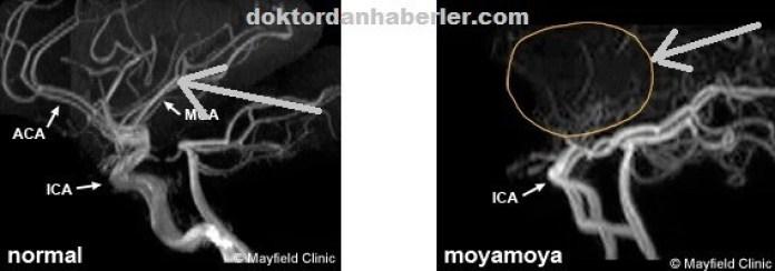 moyamoya hastaligi ve sendromu kimlerde gorulur