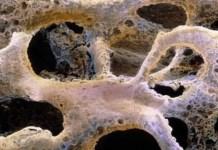 osteogenezis imperfekta nedenleri