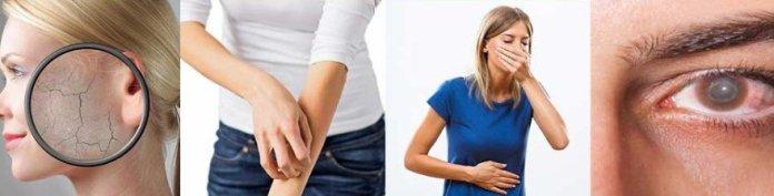 puva tedavisinin yan etkileri nelerdir