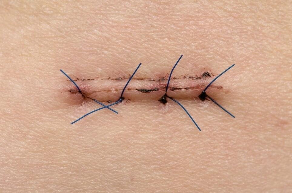 Послеоперационные раны картинки