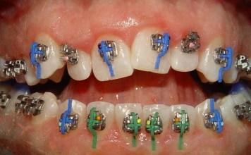ortodonti hangi hastaliklara bakar