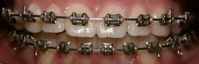 ortodonti neye bakar