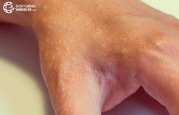Asteatotik dermatit hakkinda detayli bilgiler