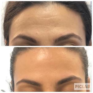 Botox - Dolce Aesthetics NY