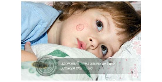 Чем лечить лишай у ребёнка должен определять врач
