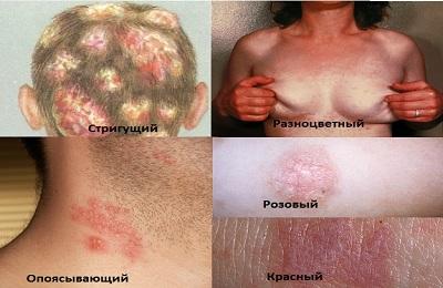 Ирунин розовый лишай Заболевания кожи Лечение