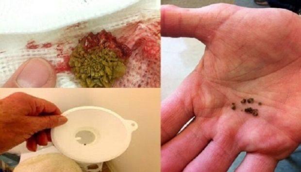 Gledajte kako bubrežni kamenci izlaze sa ovim nevjerovatnim receptom