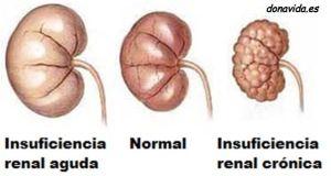 insuficiencia-renal-cronica_fotor