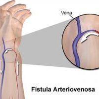 Cuidados de la Fístula Arteriovenosa (FAV)