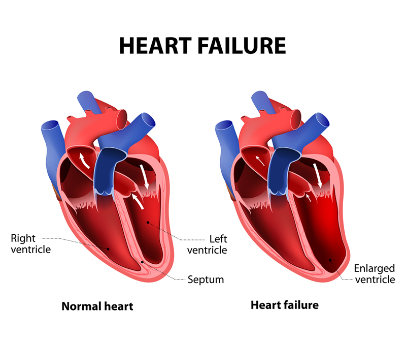 Congestive Heart Failure Causes