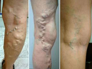 varizes causas tratamento Varizes, Causas e Tratamento