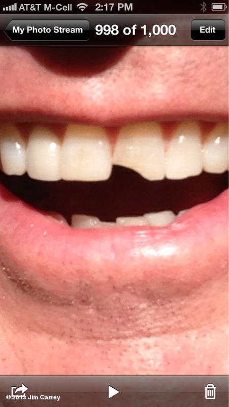 Jim Carrey Dumb and Dumber To chipped tooth