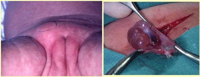 ovary in inguinal canal