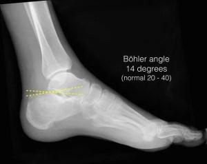Calcaneus fracture (from Radiopaedia)
