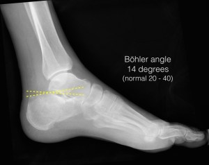 Calcaneus fracture (from Radiopaedia)