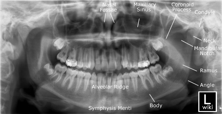 Mandible x-rays
