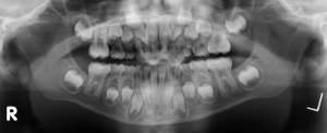 mandible1