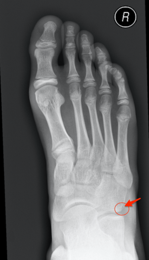Foot x-rays – Don't Forget the Bubbles