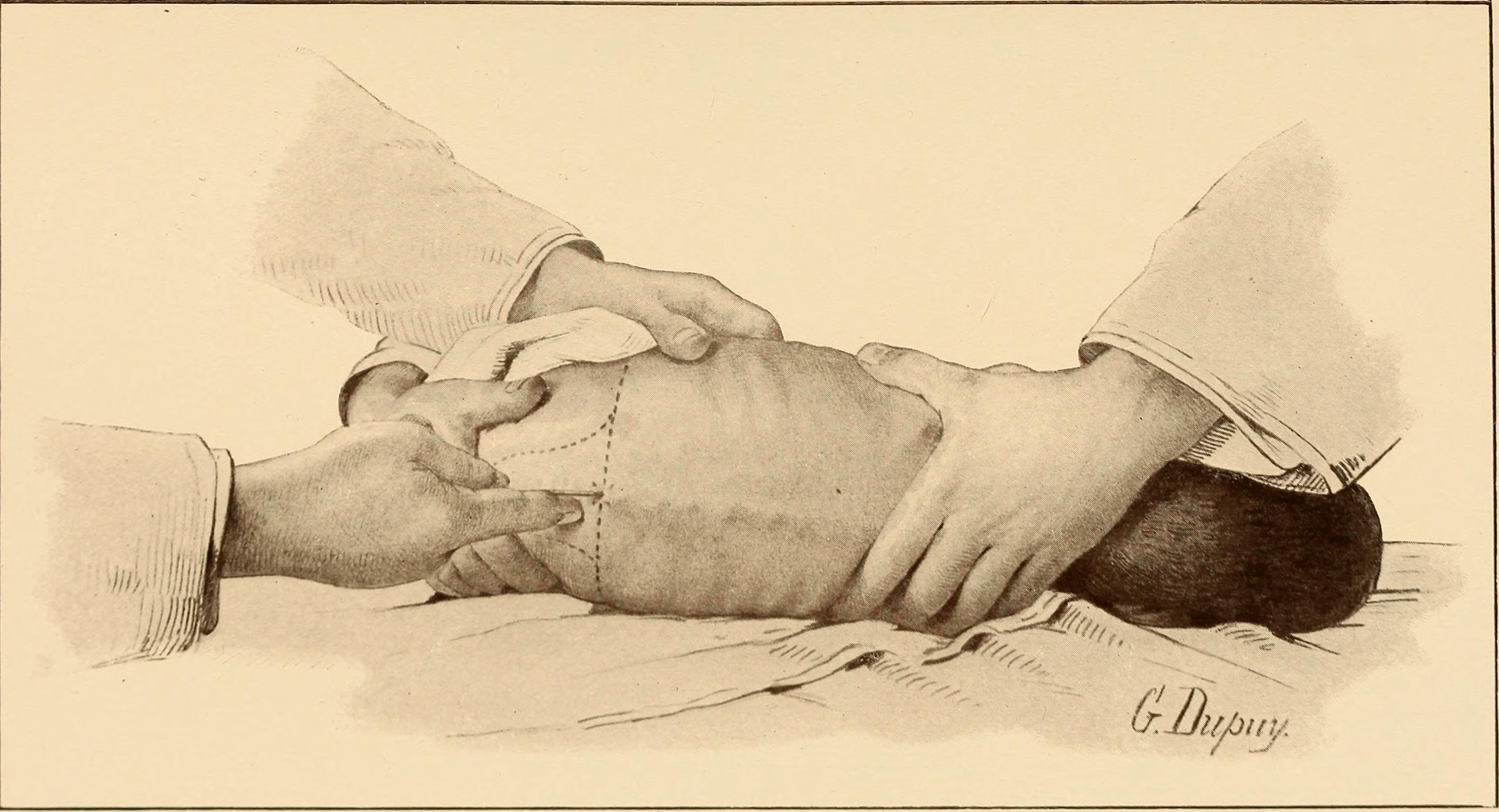 Lumbar Puncture Needle Depth