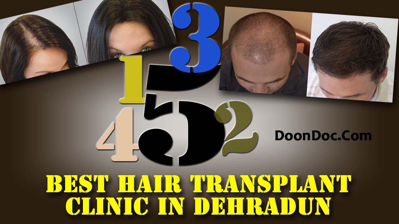 best-hair-transplant-clinic-in-dehradun-top-5-clinics-with-awesome-result