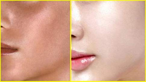 Skin Whitening in Dehradun, Treatments, Benefits and Cost