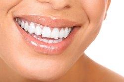 Gum Disease Treatment 1 | Dores Dental - Longmeadow, MA