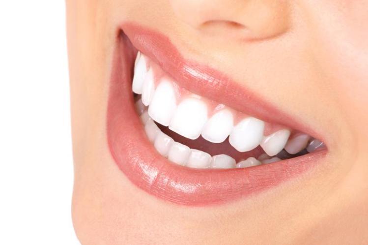 Dantų balinimas: kaip neapsigauti?