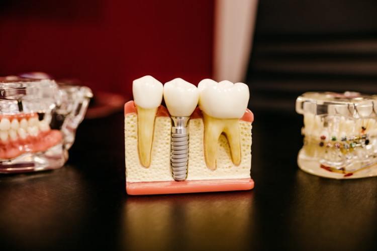 Kur implantuotis dantis Klaipėdoje?