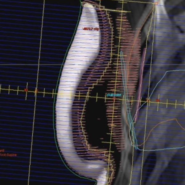 5 Minute Tutorials: 3D Breast Field-in-Field Planning