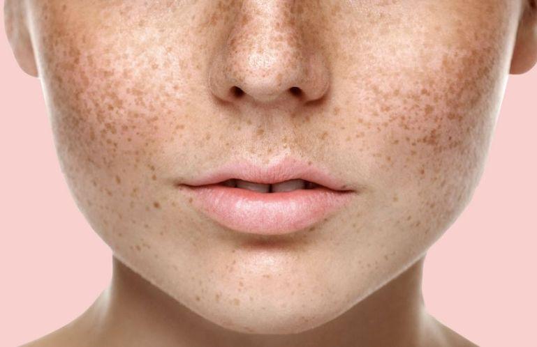 Причины возникновения коричневых пятен и способы их лечения