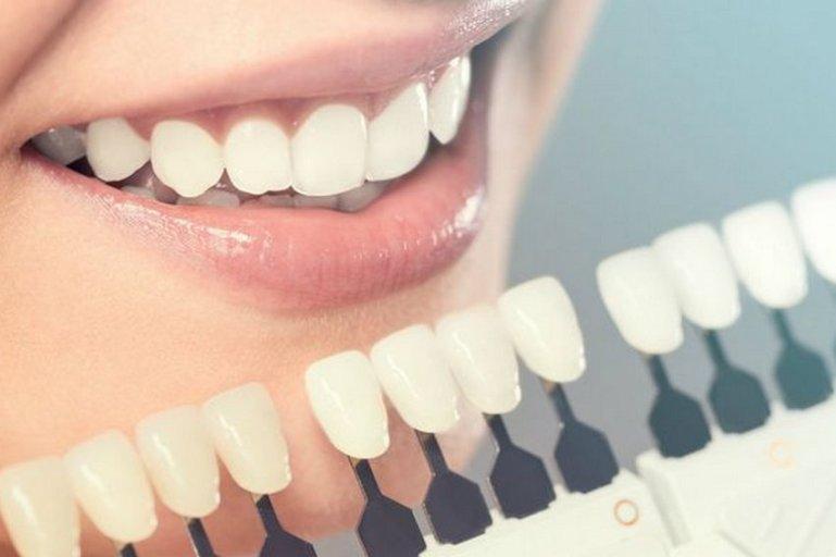 Узнай, как легко удалить зубной камень и сделать улыбку белоснежной