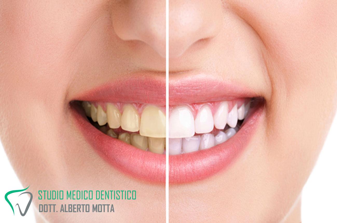 La differenza tra denti bianchi dopo il trattamento di sbiancamento dentale e prima dello sbiancamento