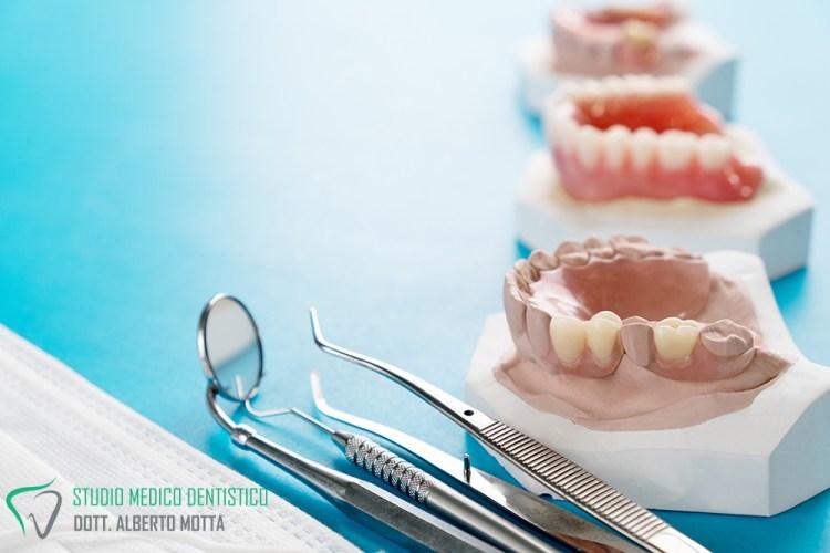 Protesi dentale mobile/dentiera