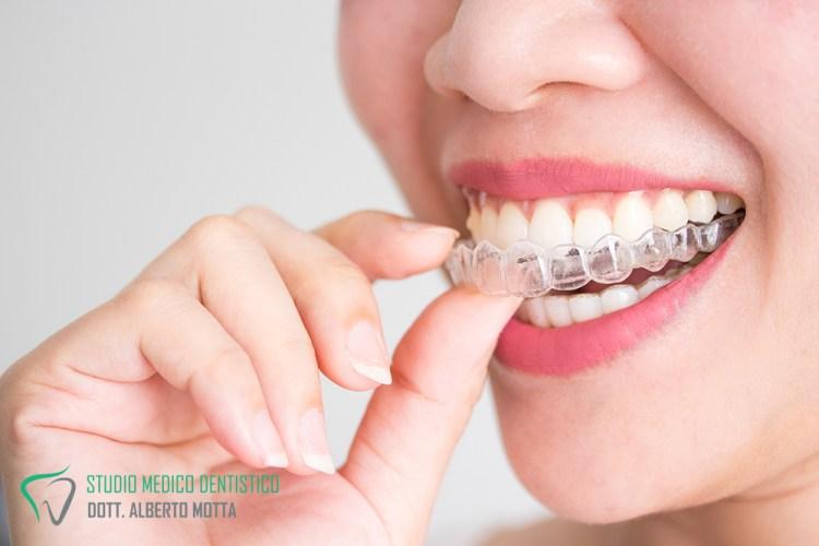 Ortodonzia invisibile: Ragazza che indossa un apparecchio invisibile Invisalign.