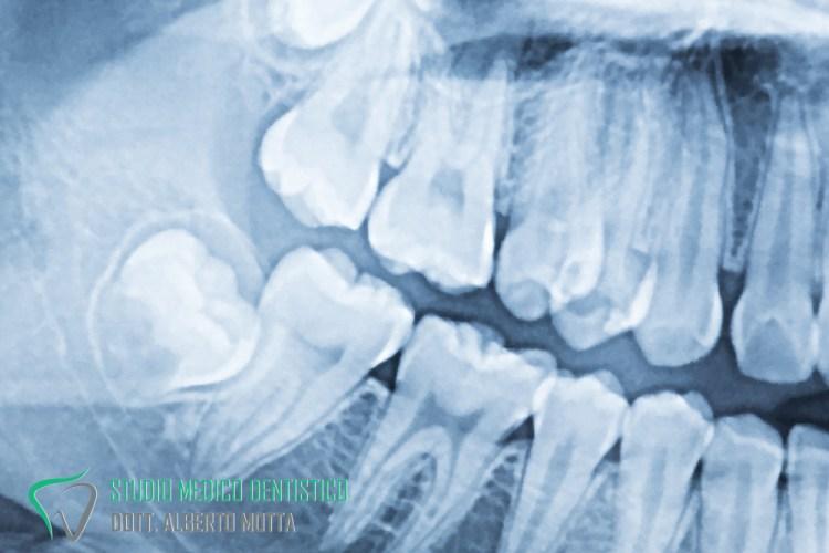 Ortopanoramica dente occluso che necessita estrazione dente