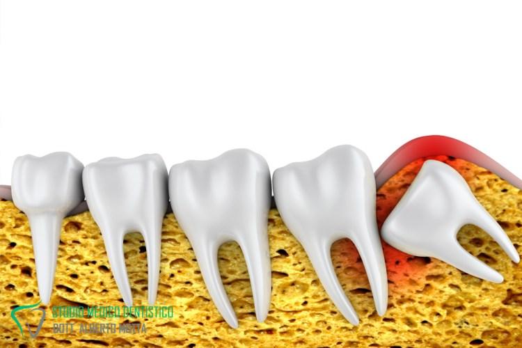 per il dente incluso si ricorre alla chirurgia orale
