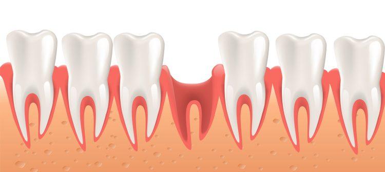 Piorrea o parodontite e diabete hanno uno stretto legame