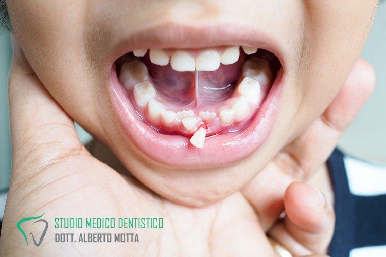 Bambino a cui è caduto un dente. Pronto per una seduta di pedodonzia