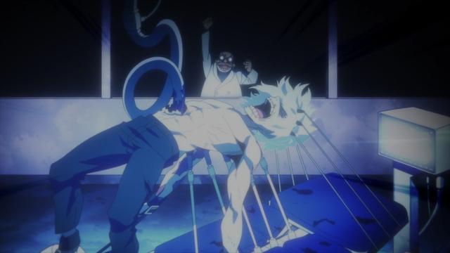 Shigaraki being experimented on from the anime series My Hero Academia Season 5