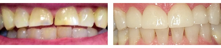 Cosmetic porcelain-veneers-before-after-2