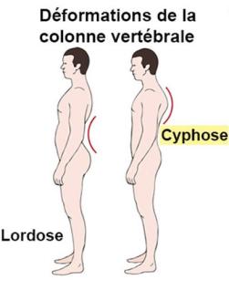 cyphose-lordose