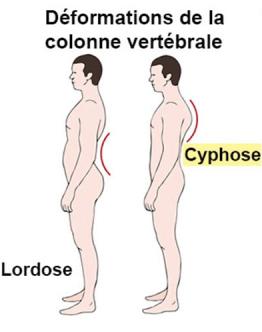 deformation-colonne-vertebrale-cyphose