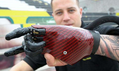 Il soldato della marina inglese, Ben Baker, presenta il primo dito bionico: Prodigist