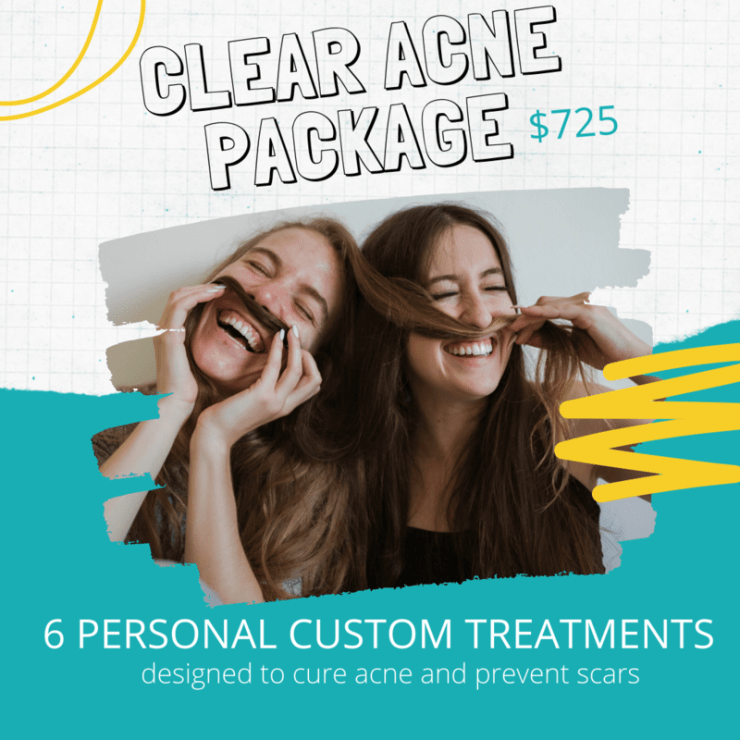 Clear Acne Package