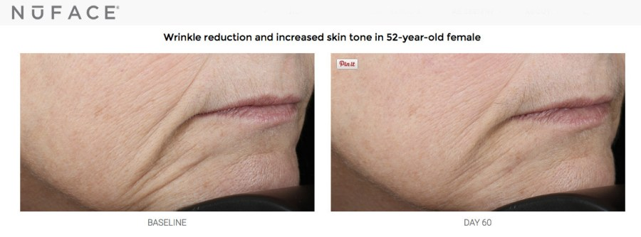 NuFACE wrinkle reduction