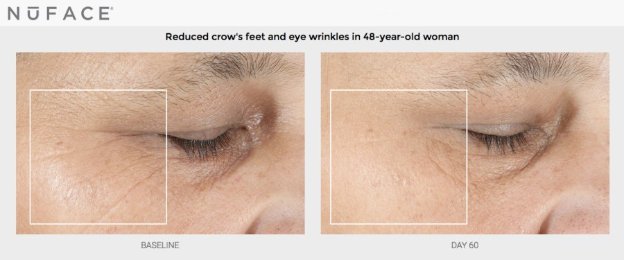 NuFACE crow's feet wrinkle reduction